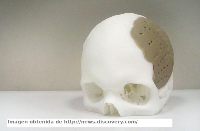 Should 3D printers change the medecine?